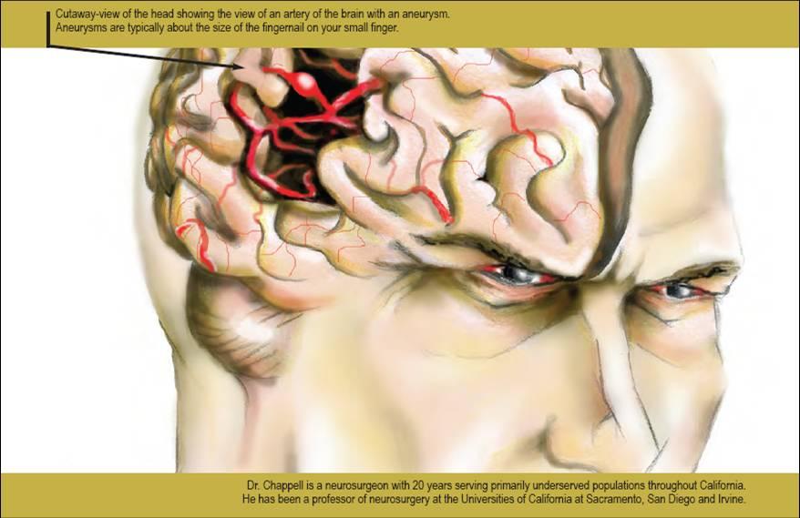 Small Brain Aneurysm Brain Aneurysm