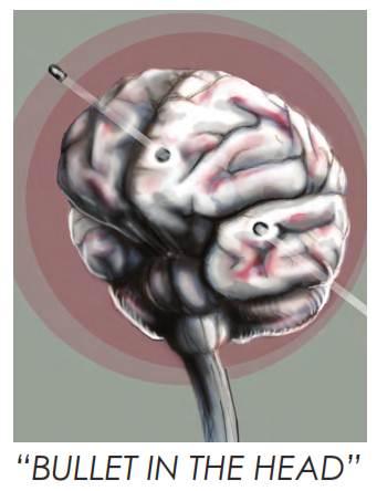 Gunshot wounds bullet points bullet in the brain publicscrutiny Gallery